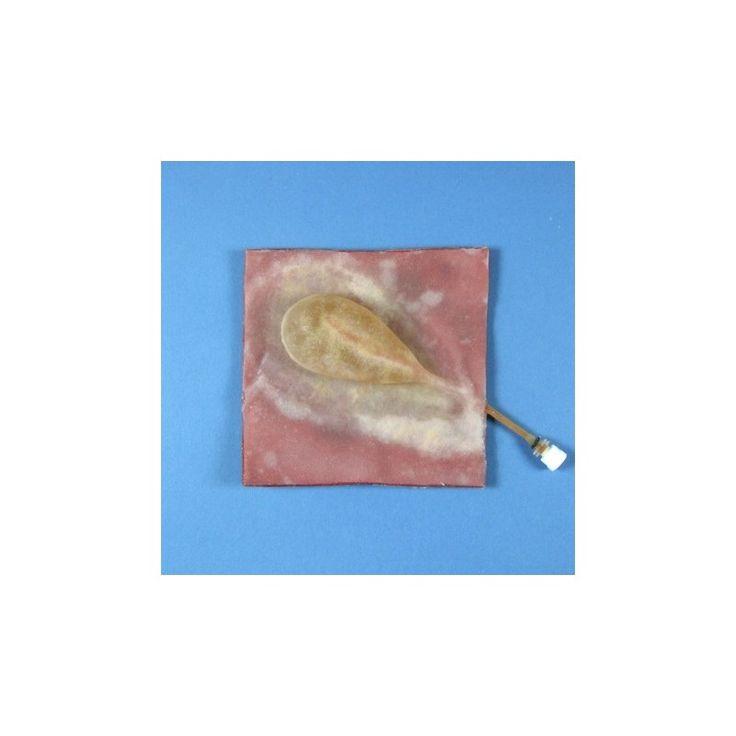 ALT50129 - VÉSICULE BILIAIRE AVEC CANAL CYSTIQUE COURT Vésicule biliaire avec canal cystique court faisant partie d'une série de quatre modèles très réalistes, de complexité croissante, permettant à l'étudiant de pratiquer l'ablation de la vésicule biliaire. Fabricant : Limbs & Things