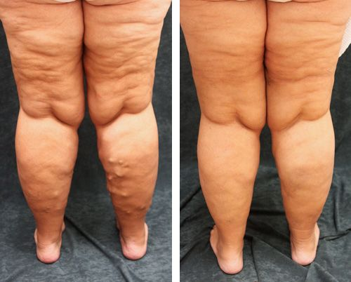 Varicose Veins:  Pregnancy is also a potential cause of varicose veins, as there is an increase in the volume of blood but an increased pressure of the uterus on the lower body. Additionally, being overweight and standing or sitting for long periods of time can affect blood flow and increase the chances of developing varicose veins.