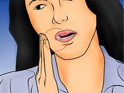 Recover after Wisdom Teeth Surgery - wikiHow
