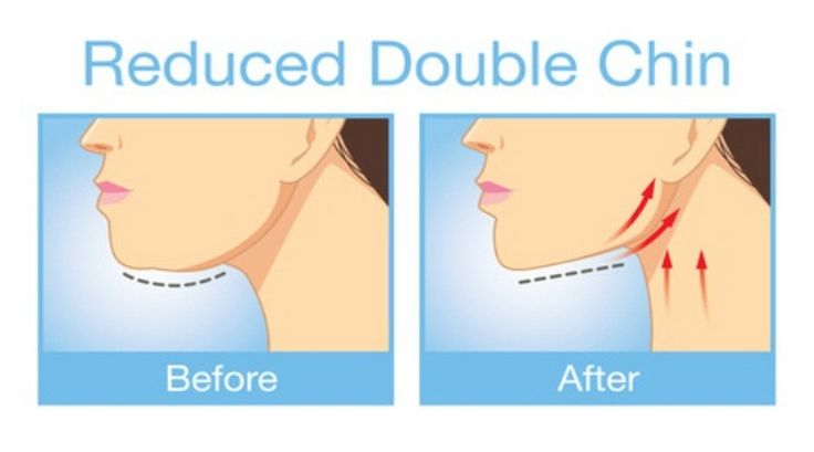 Incredible-Exercises-That-Will-Tighten-Up-Your-Loose-Skin-and-Eliminate-Double-Chin