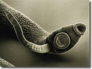 Detoxikační kúry proti parazitům v těle :: Mojepohoda