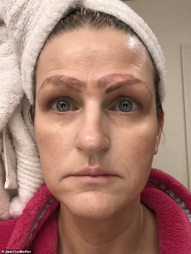 Woman Is Dumped After Botched Microblading Left Her With Four