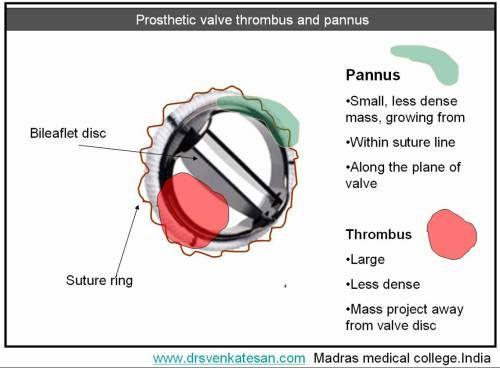 prosthetic valve echo - Google Search