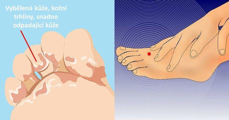 Co odhalí noha o vaší štítné žláze, cukrovce, cévách či nervech