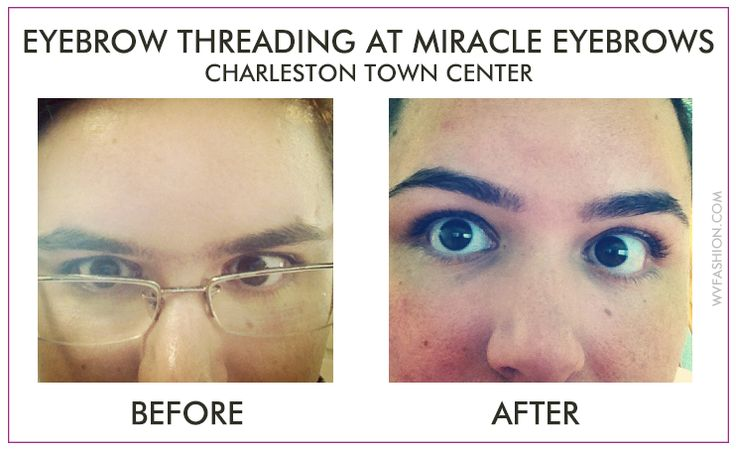 Does getting your eyebrows threaded hurt