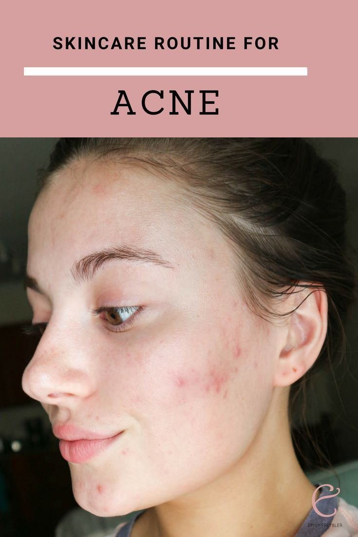 Current Skincare Routine For Acne Prone Skin Koreanskincaremask Howtogetridofpimples In 2020 Skin Care Routine Dry Skin Routine Acne Prone Skin