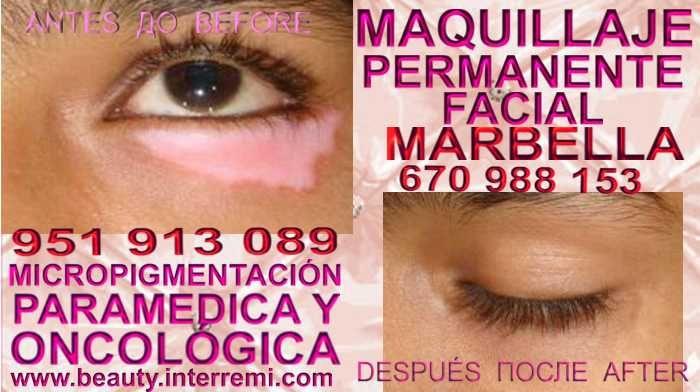 CICATRICES EN AUMENTO PECHO Tratamiento cicatrices después de reduccion senos en Málaga y Marbella or Córdoba.