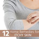 12 Home Remedies for Itchy Skin