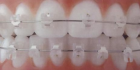 Clear (tooth-colored) Self-ligating Braces