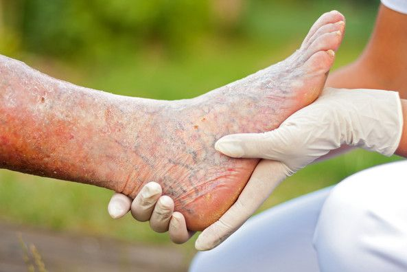 Chronic venous insufficiency is caused by reflux in the venous system of the lower leg. The skin can become dry, brawny, red, discolored or an ulcer may form.