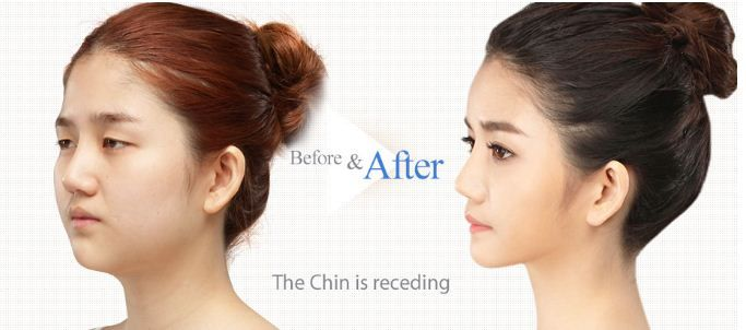 Everybody wants to achieve a slim and slender chin line. Aligning the chin line according to the facial ratio makes the face more angular without any protrusion or masculine look.  The Line Plastic Surgery Clinic is providing an exclusive offer on plastic surgeries, for further information, please send your inquires at info@thelineclinic.com