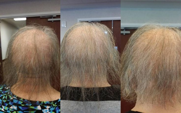 This is Bobbi, she has EB, which can cause scarring alopecia, which she has. She has a lot of difficulty growing hair. L to R photos: Before Monat, 1 month using Monat, 3 months using Monat. She was so excited her hair had grown and she could cut it smile emoticon Monat works, plain and simple. #alopecia #hairloss #naturalhaircare