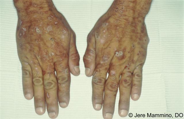 Porphyria Cutanea Tarda Natural Cure