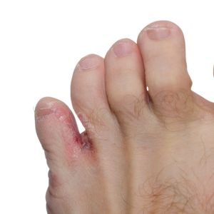 Athlete's Foot Succumbs to Household Products You May Already Have - The People's Pharmacy® #Absorbine Jr #Athlete's Foot #Fungus #Vinegar #toe fungus #home remedy #home remedies