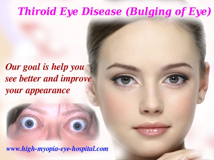 The challenging part in bulging eye treatment is to find out the underlying cause. For treatment please click the picture... Or message me +91 9495 925180