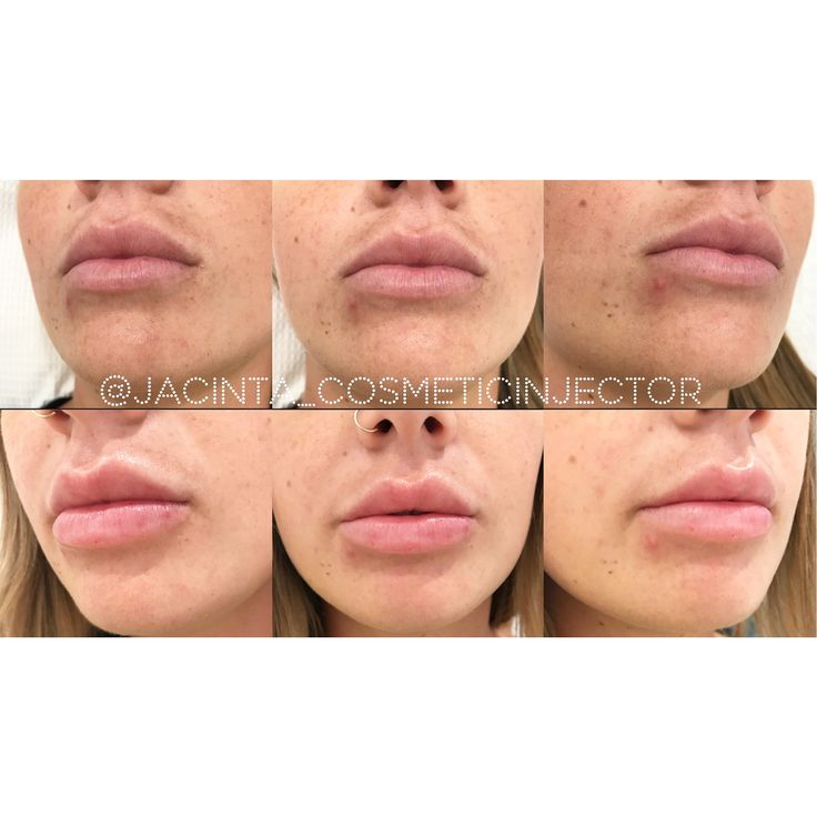 Lip injections  #lips #lipinjections #lipfillers #jacintacosmeticinjector #antiwrinkle #cosmetcinjectables #cosmeticinjector #nurseinjector #beauty #cosmetic #antiageing
