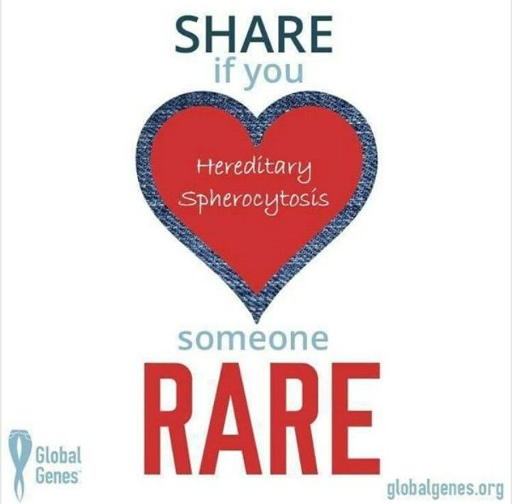 41 best images about hereditary spherocytosis on Pinterest | Red ...