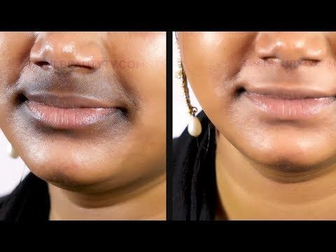 How To Remove Dark Black Patches Around Mouth In Tamil Youtube