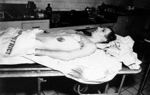 Lee Harvey Oswald autopsy photo