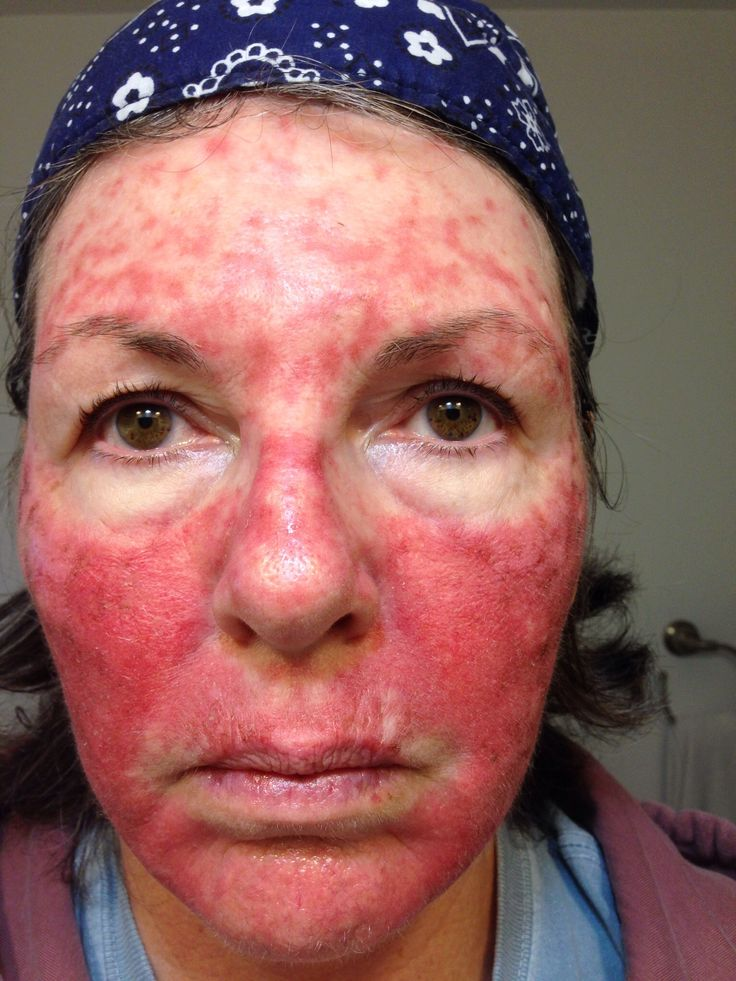 Tanning Bed For Steroid Acne