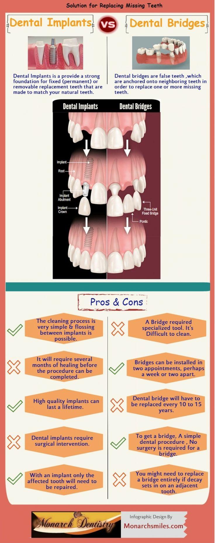 109 best Dental Facts images on Pinterest | Dental facts, Teeth ...