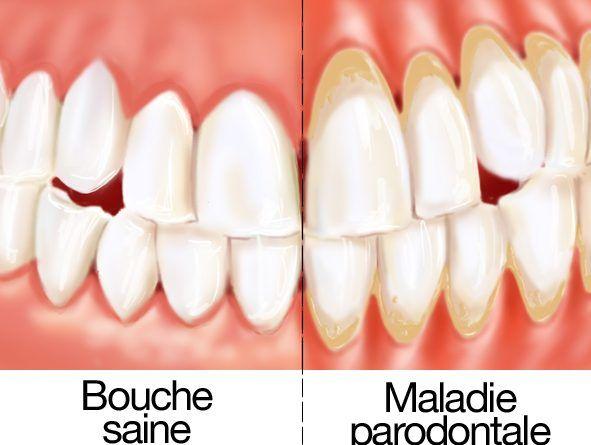 (adsbygoogle = window.adsbygoogle || []).push({});   Les maladies des gencives et les maladies parodontales sont une seule et même maladie. La maladie des gencives est présent dans l'une des toutes les 5 personnes dans le monde. Elle est prévalente chez les personnes qui ont 30 ans et plus. La maladie des gencives manifeste par voie de l'inflammation des gencives qui conduit à plusieurs autres problèmes de santé y compris la perte de dents, empoisonné le sang, une crise card...