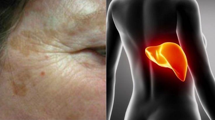 7 signes que votre foie ne fonctionne peut-être pas aussi bien qu'il le devrait
