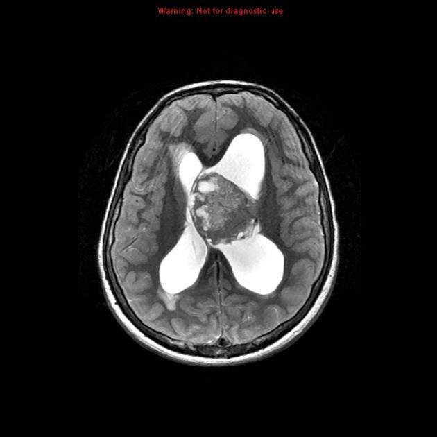 Central neurocytoma - numerous cystic areas (bubbly appearance), many of which completely attenuate on FLAIR - large mass in the body of the left lateral ventricle, displacing the septum pellucidum and obstructing the outflow of the ventricles, with resultant obstructive hydrocephalus.