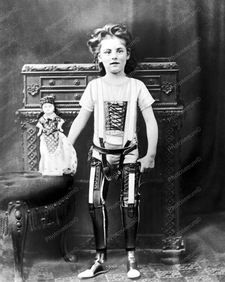 Girl Artificial Legs With Doll 1890 Vintage 8x10 Reprint Of Old Photo