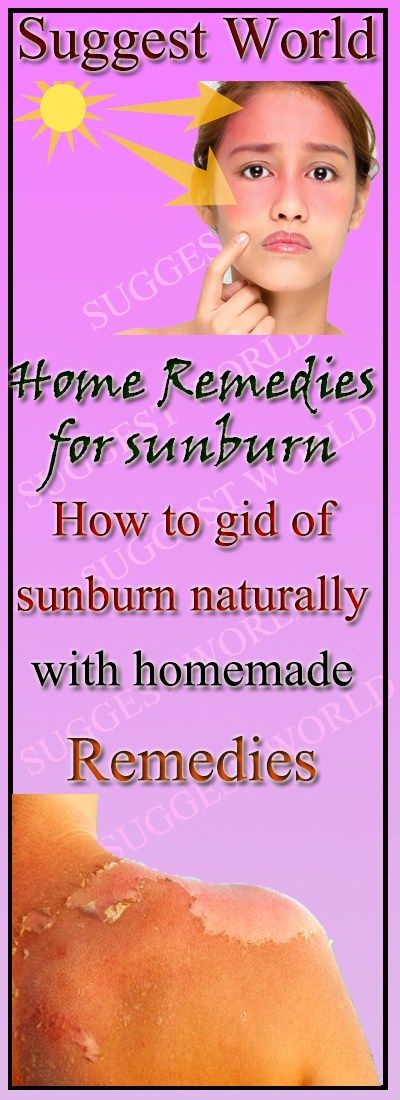 Home Remedies for Sunburn #sunburn #beauty #health #skin #remedies #skindisease