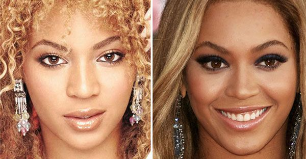Beyonce before & after plastic surgery