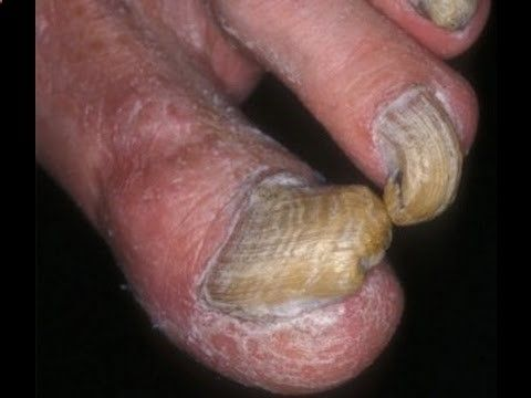 Toe Fungus Cures: How to Cure Toe Fungus With Home Remedies - YouTube