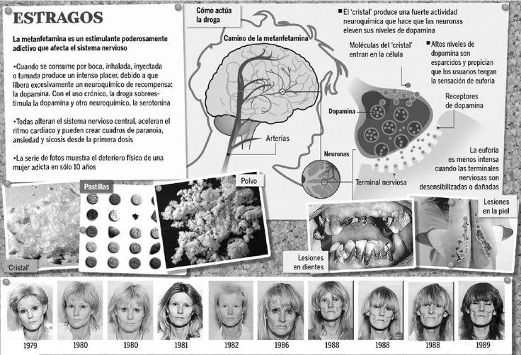 La METANFETAMINA, también conocida como 'speed', es una droga de síntesis muy adictiva que ocasiona serios daños en el cerebro. Un estudio realizado por el Instituto de Estados Unidos contra el abuso de las drogas ha constatado que el consumo de esta droga provoca cambios en el cerebro humano, tales como limitaciones en la memoria y la coordinación motriz. http://www.dmedicina.com/enfermedades/neurologicas/actualidad/el-speed-produce-cambios-a-largo-plazo-en-el-cerebro