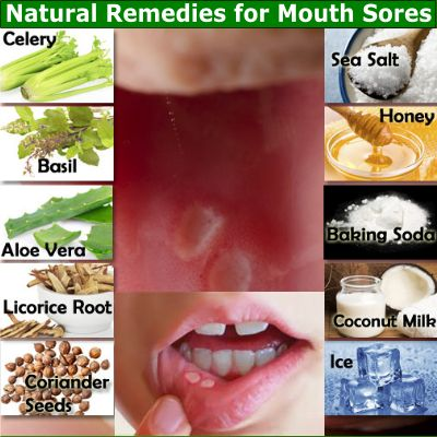 Here are some great natural remedies for mouth sores that you can choose from and it is likely that you already have most of these in your kitchen pantry.