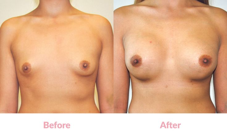 Patient LE BEFORE & AFTER 'Tear-Drop' Polyurethane Foam-Covered Silicone Implants,315cc,'Under the Muscle', Incisions under the Breasts