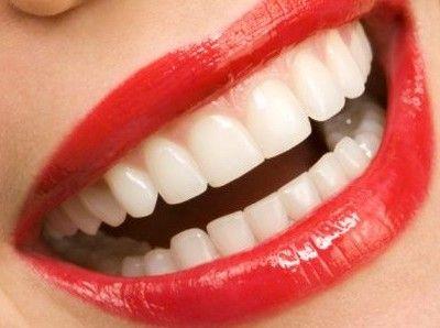 Si  bebes vino tinto, café o té negro y fumas, no esperes tener dientes blancos. Si comes algo que manche los dientes, cepíllate inmediatamente después de comer o beber alimentos de color oscuro, y usa un buen blanqueador dental casero o acude al dentista. Comer una manzana al día también ayuda a limpiar los dientes.