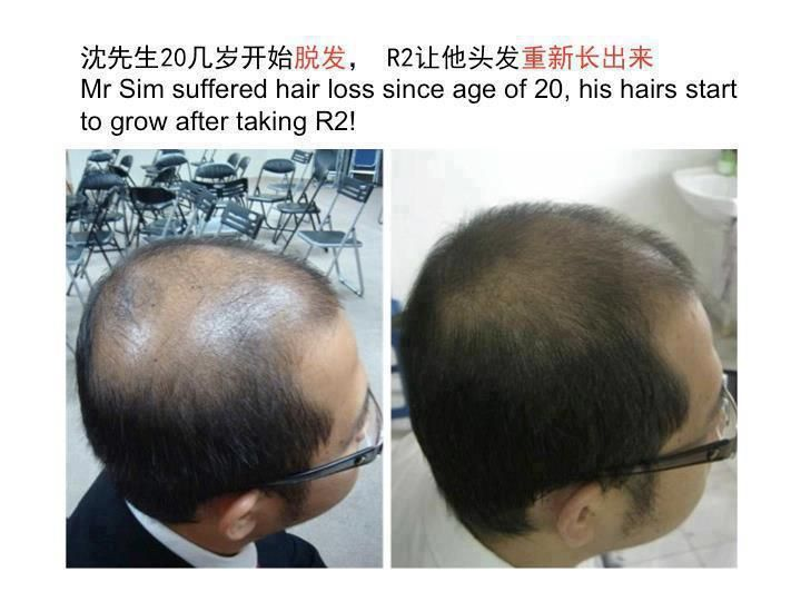 The power of Ageloc R2.