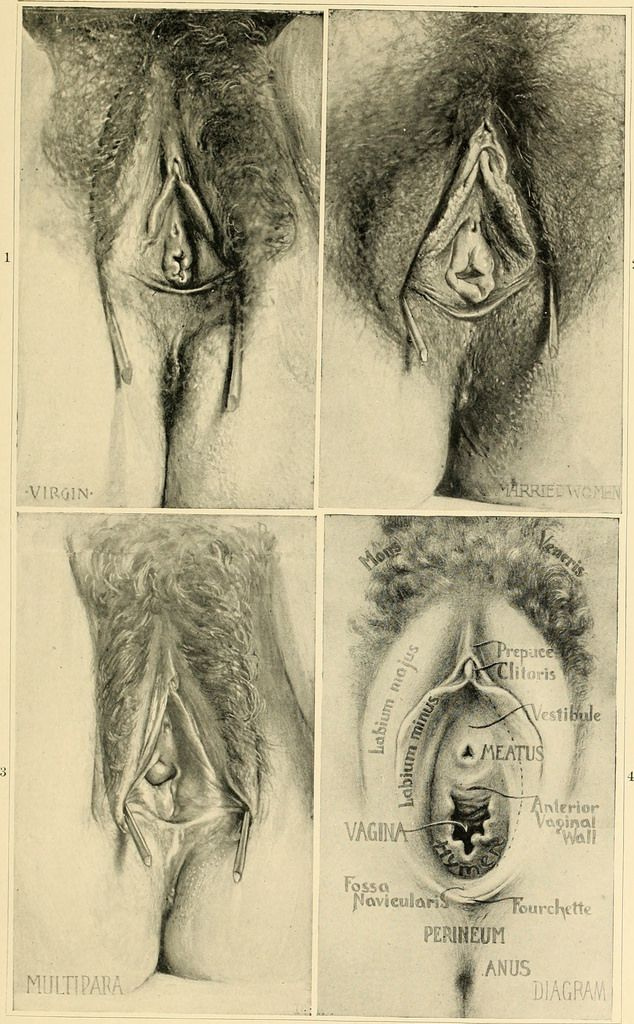 Image From Page 58 Of An American Text Book Of Obstetrics For