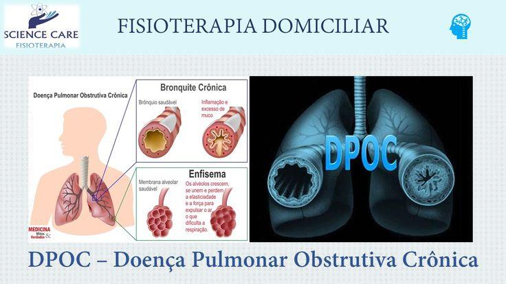 DPOC fisioterapia em casa