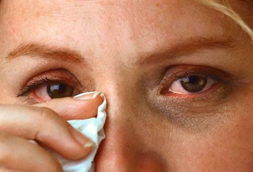 2 great homeopathic remedies for eye inflammation: Allium Cepa The eyes burn, sting and swell and are sensitive to light. Tears are profuse but do not irritate the skin around the eyes.  Euphrasia  Burning and swelling of lids, eyes itch and water constantly, symptoms feel worse from light. Watery discharge is irritating. You can also use Euphrasia for floaters, film over eyes, sensation of something in eye or unclear vision.