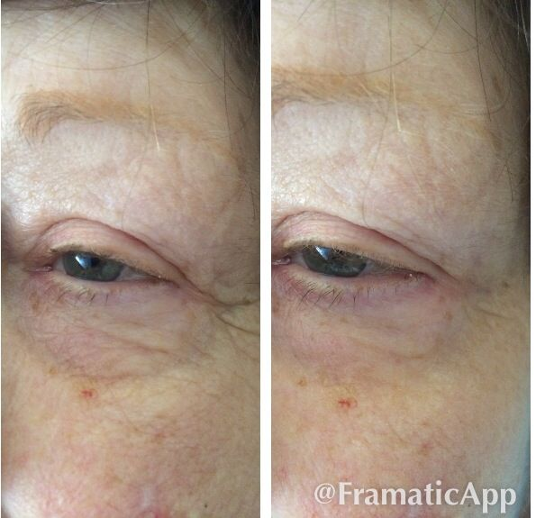 Instantly Ageless! Magic in a little vial! Message me for info!