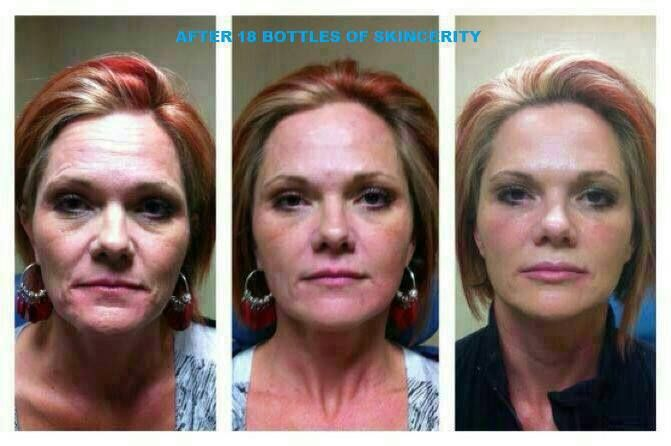 Amazing transformation after 1 1/2 years using Skincerity https://www.facebook.com/SuzannesSkinMagic