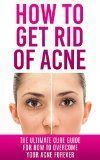 How to Get Rid of Acne: The Ultimate Cure Guide for How to Overcome Your Acne Forever (Acne Cure, Acne Treatment, Acne No More, Acne Diet, How to Get Rid of Pimples, Back Acne) - How to Get Rid of Acne: The Ultimate Cure Guide for How to Overcome Your Acn