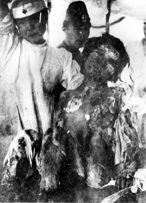 Atomic bomb victim, Hiroshima