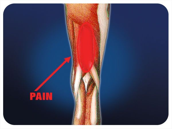 17 best images about upper leg on pinterest runners it band and leg workouts for Exterior knee pain