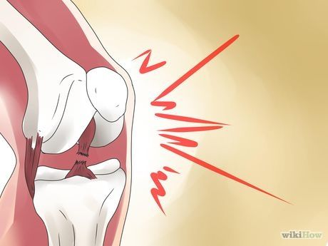 Image titled Confirm a Partial ACL Tear Step 1