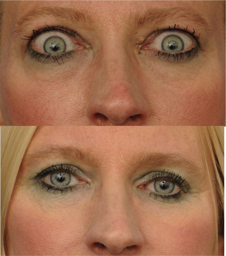 A very active 45 year old presented with severe thyroid eye disease accompanied by eye bulging, double vision, inability to close eyes during sleep and orbital ache /pain. She was formerly very active (biking, running) but had to give up those activities due to double vision and pain. She underwent bilateral customized medial lateral and fat decompressions, achieving a symmetric result and 7mm reduction in proptosis. She underwent strabismus surgery, but no eyelid or revision surgery ...