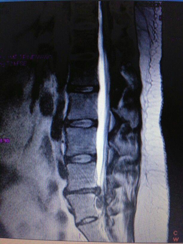 My MRI of Cauda Equina Syndrome | Cauda equina | Pinterest ...