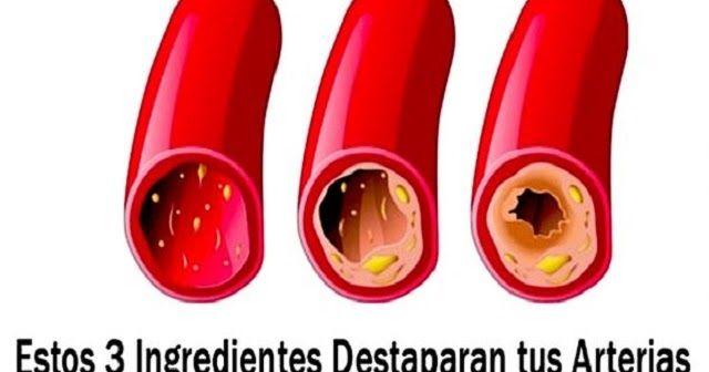 RECETA ALEMANA ANTIGUA CAPAZ DE LIMPIAR ARTERIAS Y COMBATIR CASI TODAS LAS ENFERMEDADES  #Nutrición y #Salud YG > nutricionysaludyg.com