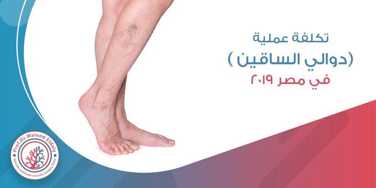 تكلفة عملية دوالي الساقين في مصر